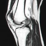 MRI – Left Knee – Slice 14 – Jan 2011