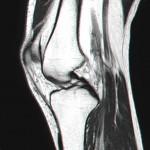 MRI - Left Knee - Slice 15 - Jan 2011
